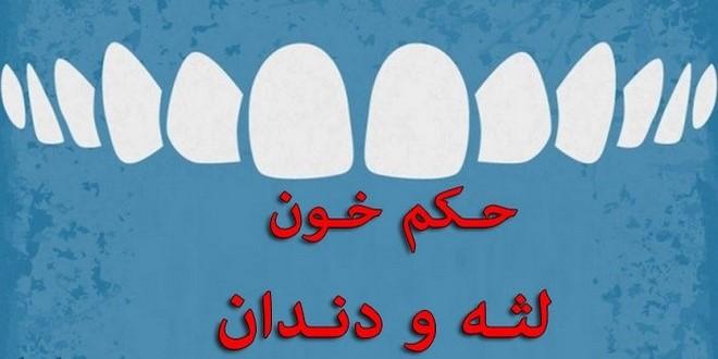 حکم خون لثه و دندان
